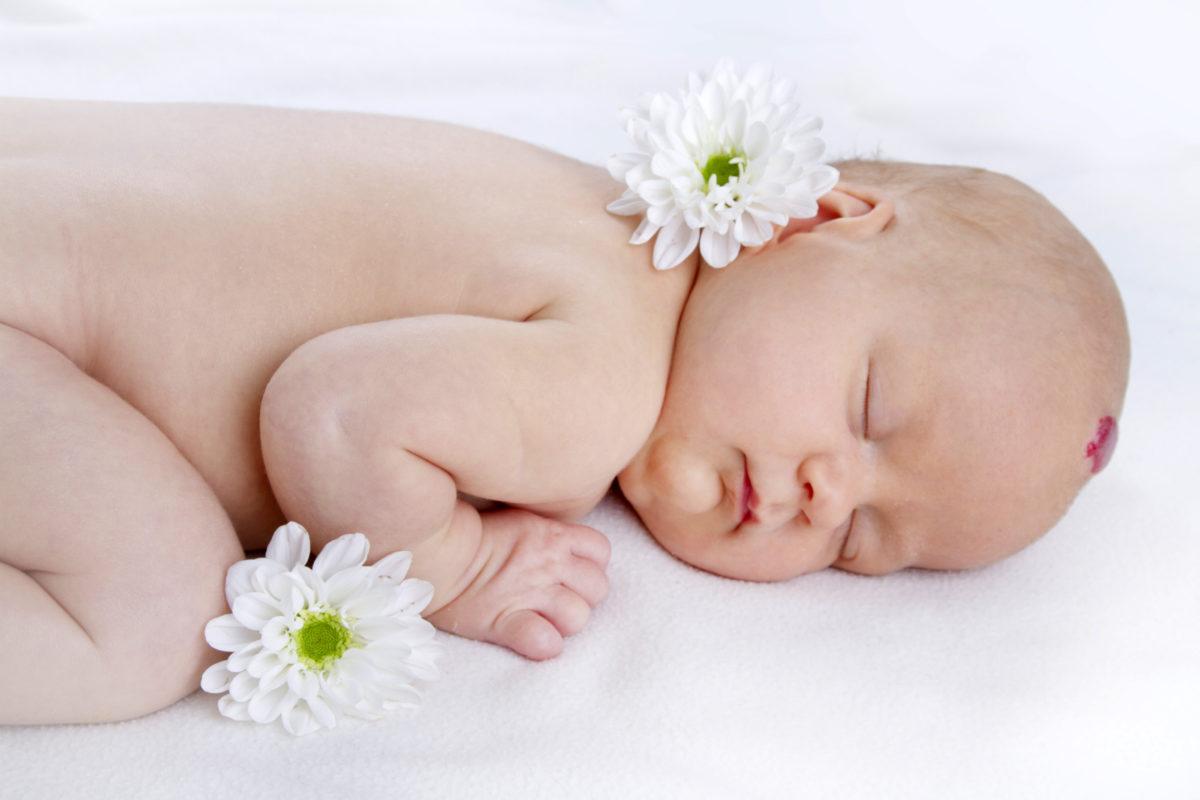 Гомеопатическое лечение гемангиомы новорожденных