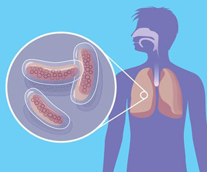 Проблема туберкулеза в современном обществе. Случай гипердиагностики латентного туберкулеза.