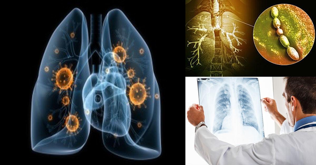 Случай пневмонии